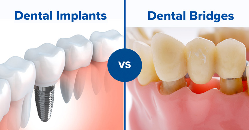 dental-bridges-vs-dental-implants